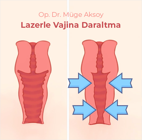 Lazerle Vajina Daraltma Ankara