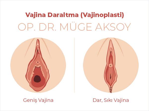 Vajina Daraltma (Vajinoplasti) Ankara